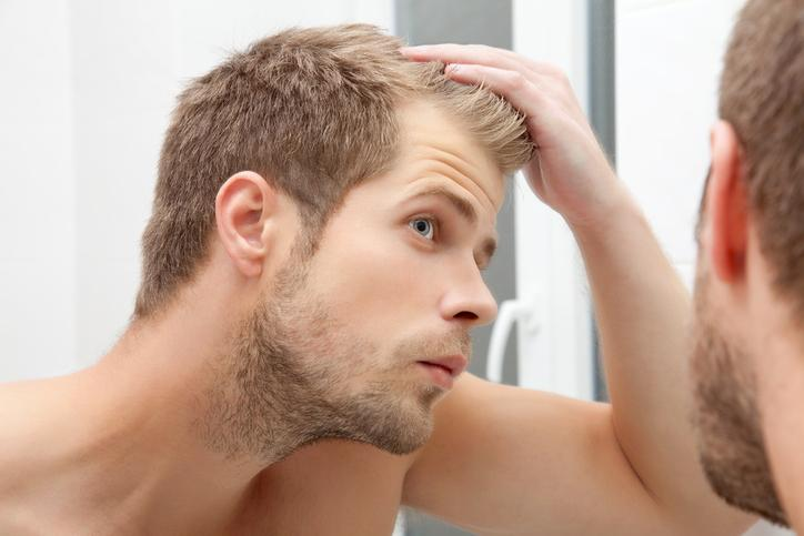 paura di perdere i capelli fobia